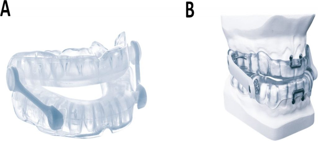 Dụng cụ đẩy hàm dưới giữ cho đường dẫn khí của bạn mở bằng cách kéo hàm dưới một chút về phía trước