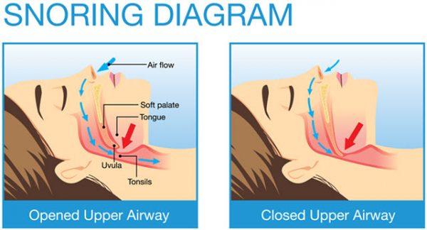 Theo hầu hết các thống kê về ngáy, khoảng 40% nam giới và 24% phụ nữ ngáy ít nhất vài đêm một tuần